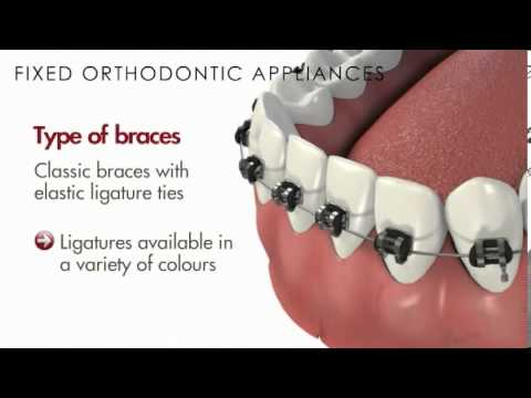 Malocclusion/Fixed Orthodontic Appliances(Braces) - YouTube