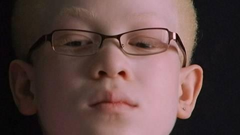 Albinism: Caught Between Dark and Light