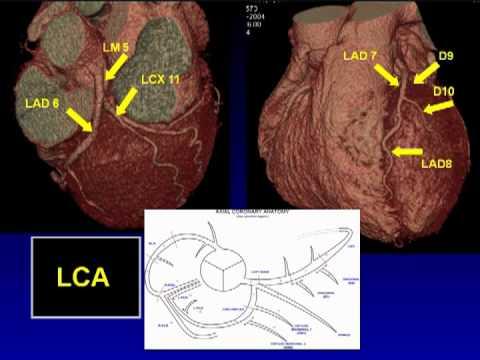 62   Coronary Anatomy Normal Variants thumbnail