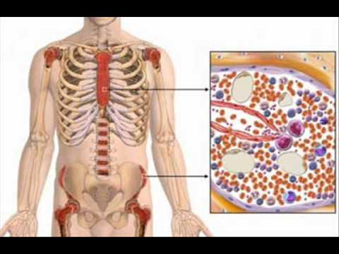 APLASTIC ANEMIA , HEALTH EDUCATION , INFECTION CONTROL (ICSP) , URDU / HINDI . PART 2 OF 3