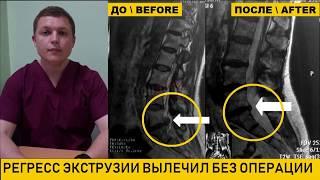 Грыжа диска L5-S1   ЛЕЧЕНИЕ БЕЗ ОПЕРАЦИИ  Регресс экструзии  Prolapsed Disc Treatments- Non-surgical