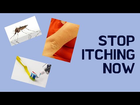 how to stop your vagina from itching