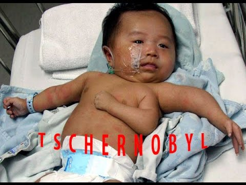 Tschernobyl Missgeburten