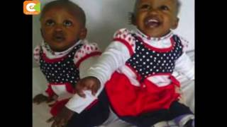 President Kenyatta lauds doctors who separated conjoined twins
