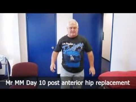 Anterior Hip Replacement Sydney | Hip Surgery Sydney