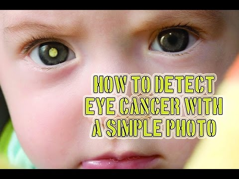 How to Detect Eye Cancer With A Simple Photo