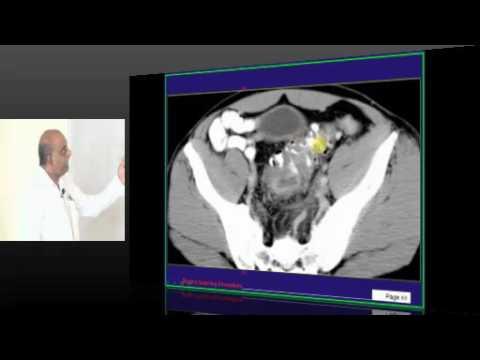 Image based Clinical Vignette based DNB CET , NEET PG Mock test Discussion