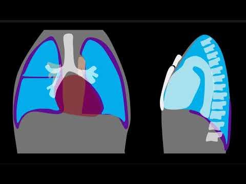 Pneumothorax Explained by Prometheus Lionhart, MD