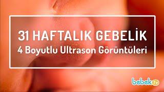31 Haftalık Gebelik 4 Boyutlu Ultrason Görüntüleri ● www.bebek.tv