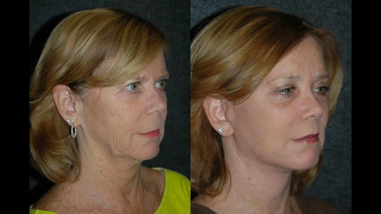 facelift before and after | best nyc facelift and plastic surgeon dr