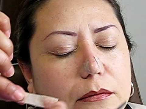 Como colocar cinta micropore en la nariz