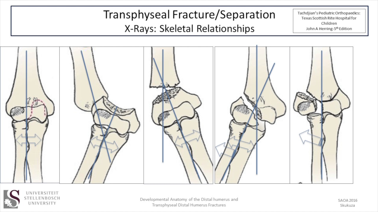 Developmental Anatomy Of The Elbow And Transphyseal Session 7