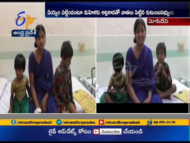Women Files Case Against Husband | Over Harrasment Case | at Mopidevi