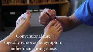 Spread Your Toes™ Series: Ingrown Toenails Conservative Care vs. Conventional Care thumbnail