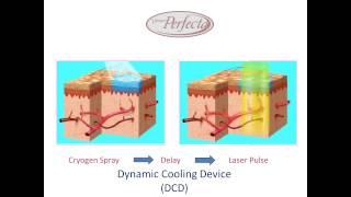 Vbeam Perfecta (Candela) - лазер для лечения сосудистых поражений кожи(Vbeam Perfecta — лазер для лечения сосудистых патологий. Подробнее: http://www.lascos.com.ua/katalog/vbeam-perfecta/, 2014-07-25T10:58:51.000Z)
