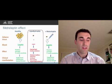 Metreleptin for generalized lipodystrophy - Video abstract 66521
