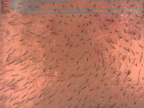 beard-hair-growth-on-minoxidil,-chin-(10.1-month)-time-lapse