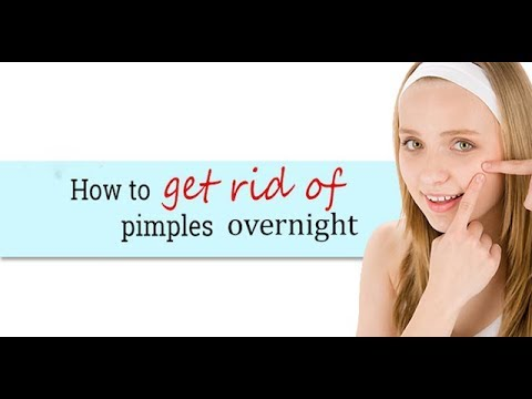 Acne Treatment Home Remedies - Kill Acne Overnight - Natural Treatment For Remove Back Acne