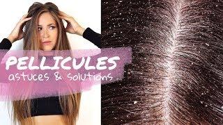 CONSEILS CHEVEUX #7 | Se débarrasser des PELLICULES + 2 RECETTES | Laura MILOW