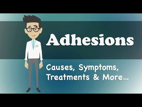 Adhesions - Causes, Symptoms, Treatments & More…