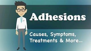 Video Adhesions - Causes, Symptoms, Treatments & More… download MP3, 3GP, MP4, WEBM, AVI, FLV Juli 2018