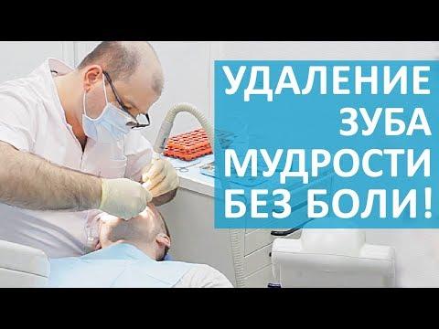 👉 Как проходит удаление зуба мудрости и восстановление после. Удаление зуба мудрости. 12+