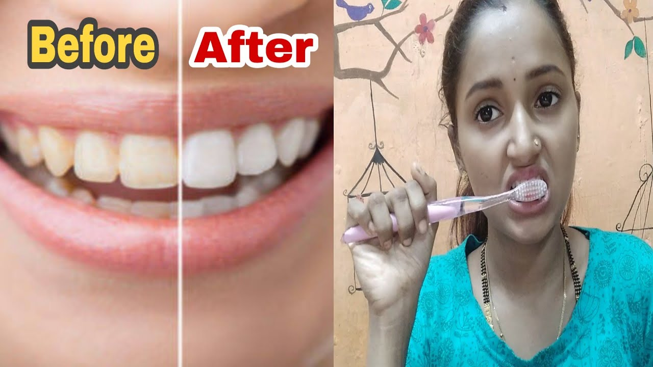 Teeth Whitening At Home Hindi Style High Youtube