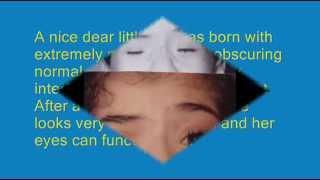 Dr Hayam Adel - plastic eyelid surgery +corneal tattoo(1)