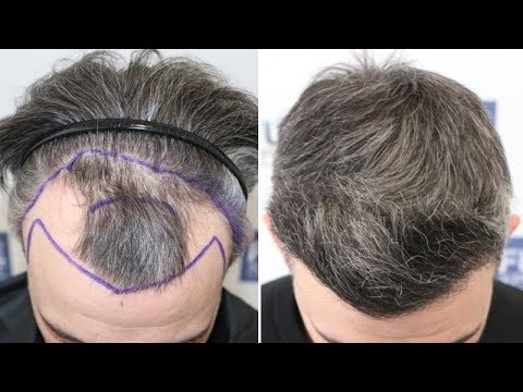 fue-hair-transplant-(2854-grafts-nw-iii)-by-dr-juan-couto---fuexpert-clinic,-madrid,-spain