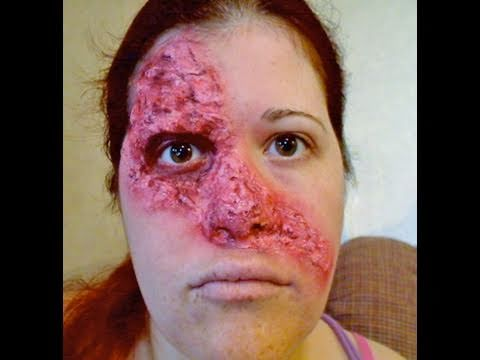 Means facial burn pictures really