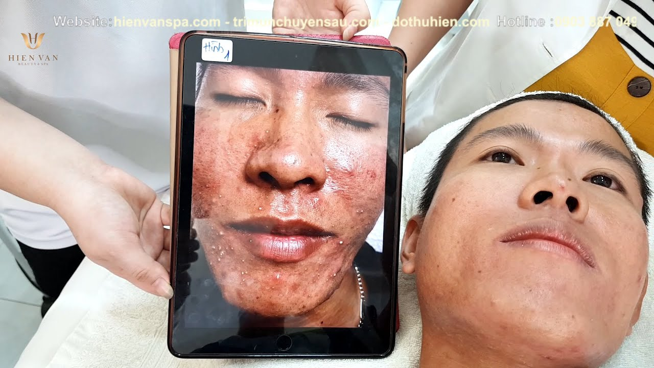 Review client in middle of treatment process|364| Tuấn Vũ
