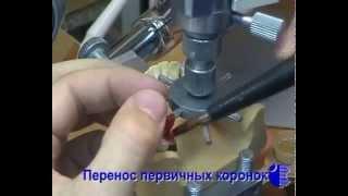 Этапы изготовления бюгельных протезов часть 2(, 2015-04-06T15:05:37.000Z)