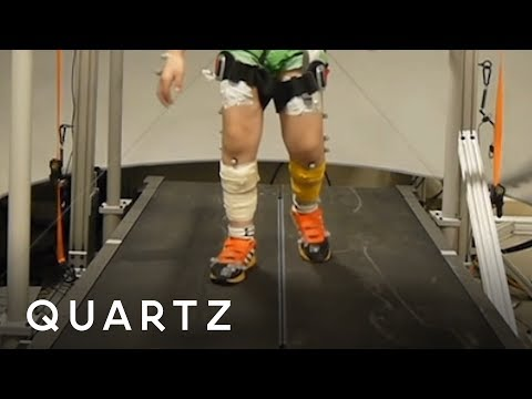 Training kids with cerebral palsy to walk better