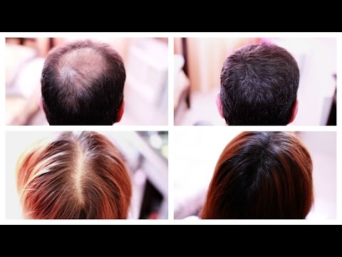 how-to-cover-up-hair-loss,-bald-spots,-thinning-hair,-receding-hairline-effectively--a-must-see