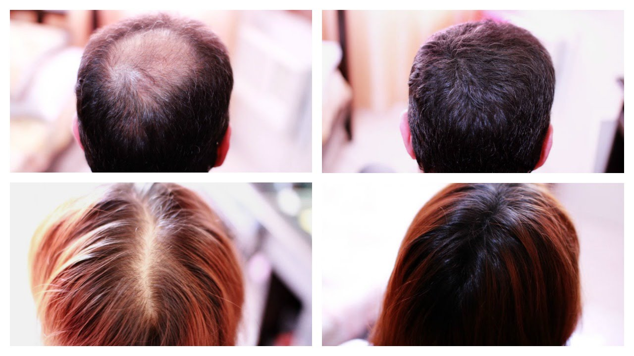How to Cover Up Hair Loss, Bald Spots, Thinning Hair, Receding Hairline  Effectively- A MUST SEE