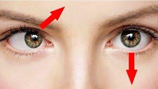 видео Разное зрение на глазах – причины и лечение