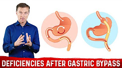 Nutritional Deficiencies After Gastric Bypass Surgery