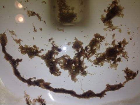 Foot-long Rope Worm Parasite Removal w/ Coffee Enema ...