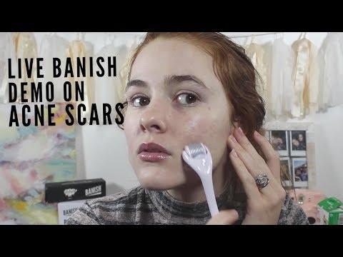 HOW TO USE BANISH STARTER KIT