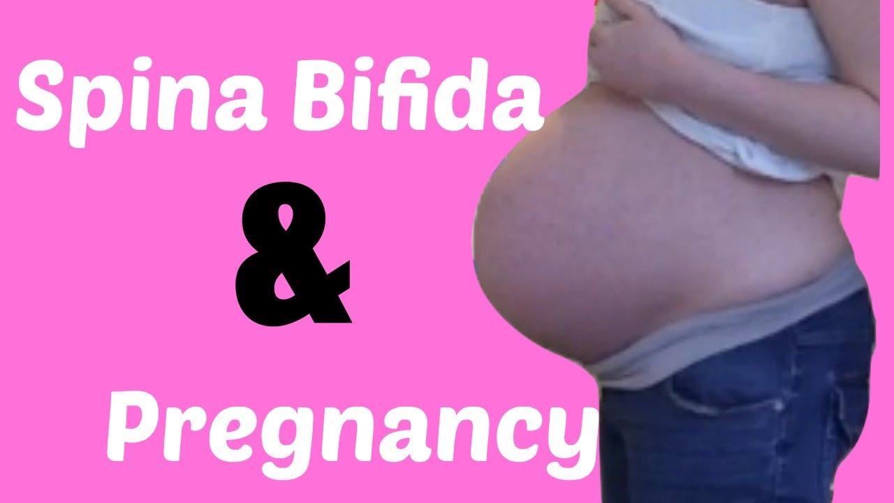 Spina Bifida and Pregnancy