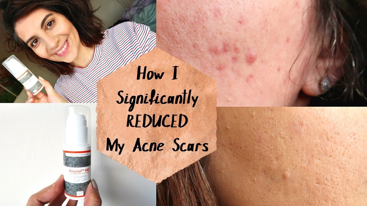 How I Reduced My Old Acne Scars Nourisil Md Silicone Scar Gel Natasha Summar Ad Youtube