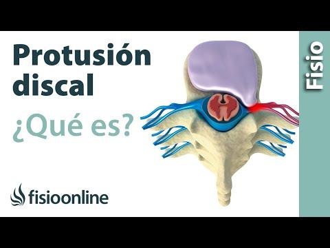 Protrusión o complejos disco osteofitarios posteriores. ¿Qué es?