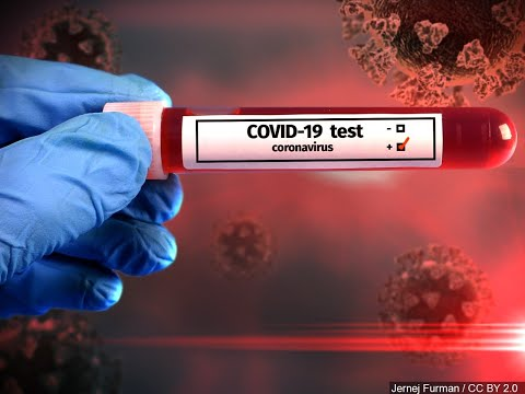 Your blood type doesnt affect your odds of catching COVID-19, Intermountain study says