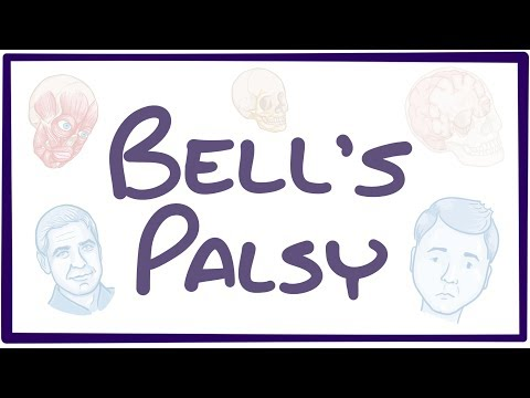 Bell's Palsy causes, symptoms, diagnosis, treatment, pathology