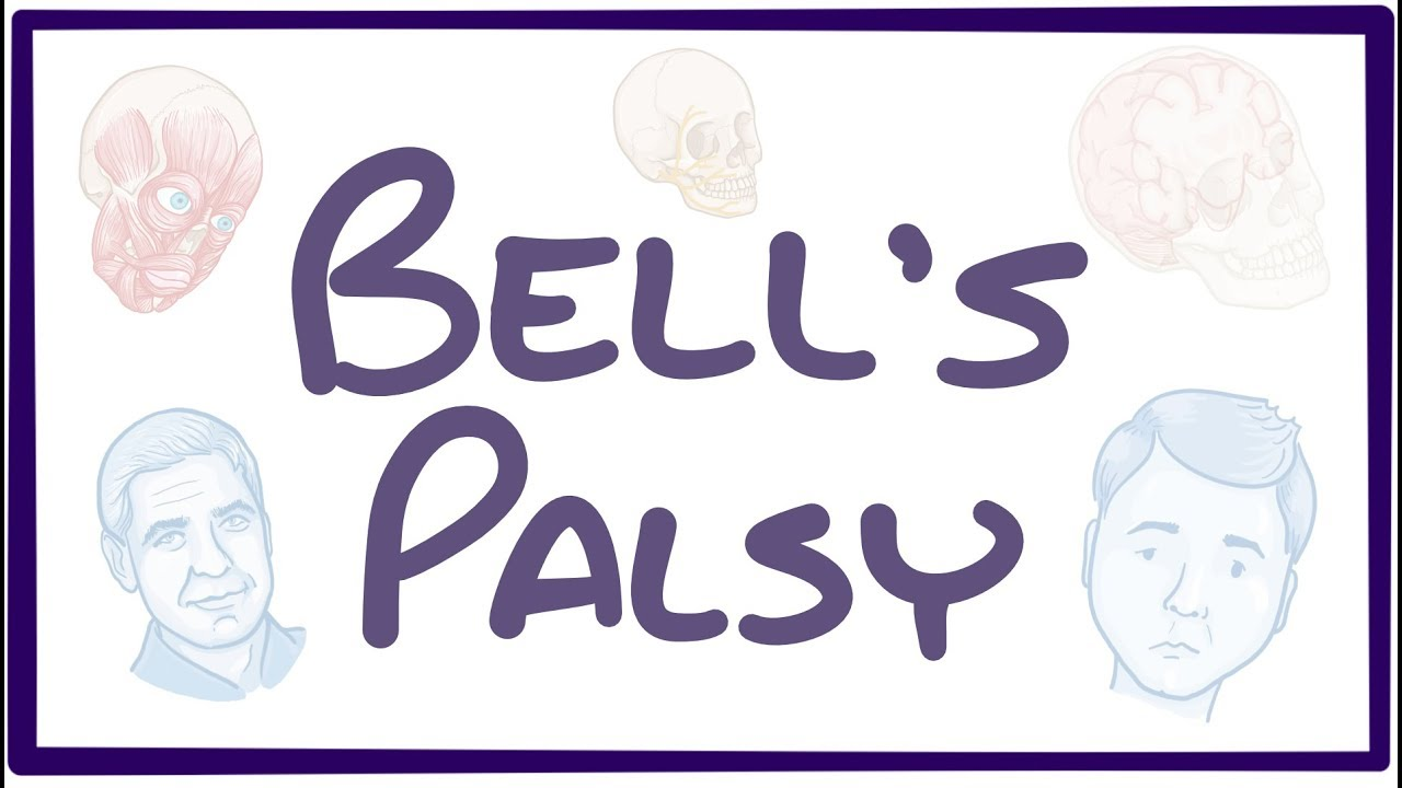 Bell S Palsy Physiopedia