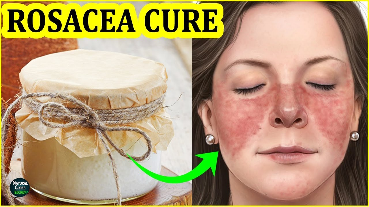 How To Get Rid Of Rosacea Naturally Rosacea Treatment At Home