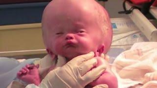 【열람 주의】  거대한 머리로 태어난  갓난아기에 8년후의 모습…  【감동】 【기적】