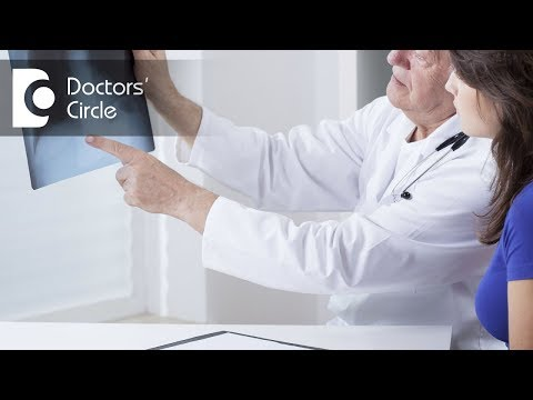 Does abnormal scar on lung X ray signifies a cancer lesion? - Dr. Hirennappa B Udnur