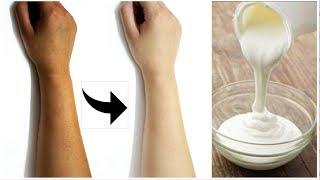 3 Days FAIRNESS CHALLENGE | INTENSIVE SKIN WHITENING & BRIGHTENING | Get fair skin fast