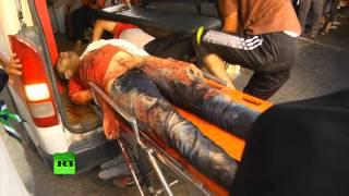 Палестинский врач: То, что происходит в секторе Газа — не война, а резня